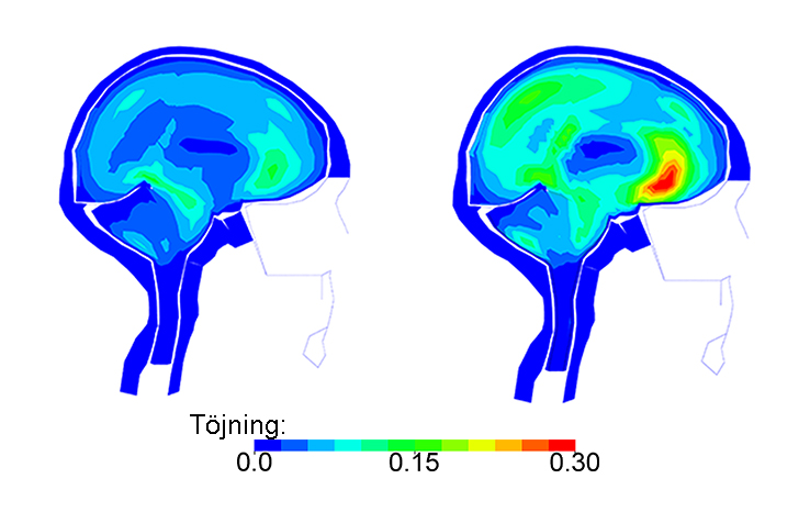 Simulations show how helmets would have protected bike crash victims' brains   KTH